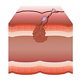 Tumour, illustration
