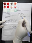Blood group test