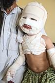 Burns patient, Afghanistan