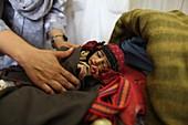 Malnourished baby, Afghanistan