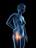Woman with a painful hip, illustration