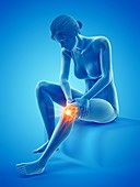 Woman with a painful knee, illustration