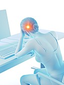 Woman with a headache while working, illustration