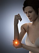Woman with a painful elbow, illustration