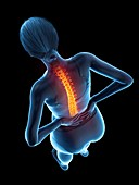 Woman with a painful back, illustration