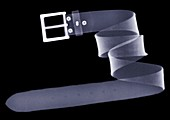 Coiled belt, X-ray