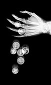 Coins falling from hand, X-ray