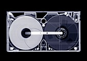 Video tape cassette, X-ray