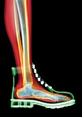 Lace-up boot MRI style, X-ray