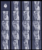 Multiple scans of knee joint, MRI