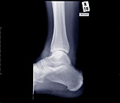 Ankle joint from side, X-ray