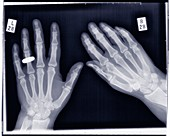 Hands with wedding ring, X-ray