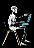 Human skeleton sitting with laptop computer, X-ray