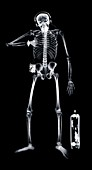 Human skeleton with briefcase and headphones, X-ray