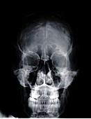 Human skull, X-ray