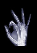 Hand making an OK gesture, X-ray