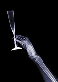 Person holding a fluted glass, X-ray