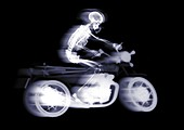 Person riding a motorcycle, X-ray