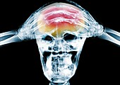Person with hands on their head, X-ray