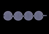 Circular linked bracelet, X-ray