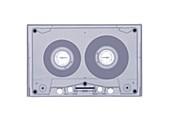 Tape cassette, X-ray