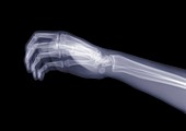 Hand and arm from the side, X-ray