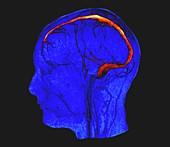 Brain veins and venous sinuses, MRI angiogram