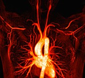 Thoracic outlet syndrome, MRI angiogram