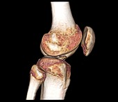 Healthy knee, CT scan