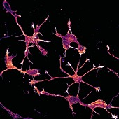 Cortical neurons showing cytoskeleton, light micrograph