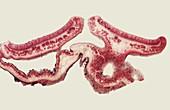 Parmelia lichen, light micrograph