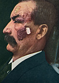 Port-wine stain, historical image