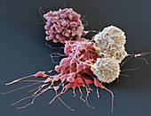 White blood cells attacking cancer cells, SEM