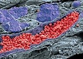 Pancreas tissue, SEM