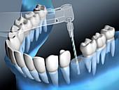 Drilling for a dental implant, illustration