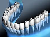 Dental implant, illustration