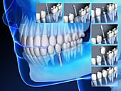 Dental implant insertion, illustration