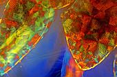 Amphipod crustacean body, polarised light micrograph