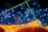 Vorticella protozoa, polarised light micrograph