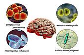 Causes of bacterial meningitis, illustration