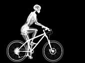 Skeleton and mountain bike, X-ray