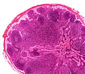 Rabbit lymph node, light micrograph