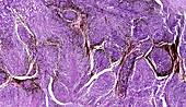 Malignant melanoma in human skin, light micrograph