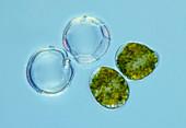 Dinoflagellates, light micrograph