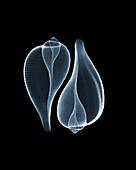 Sea snail shells, X-ray