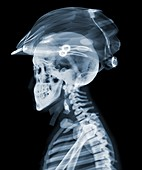 Rider with cycle helmet, X-ray
