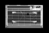 Clockwork alarm clock, X-ray