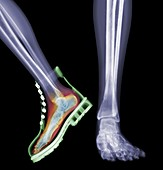 Skeleton feet with one foot in boot, X-ray