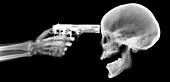 Gun and skeleton, X-ray