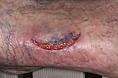 Flap laceration